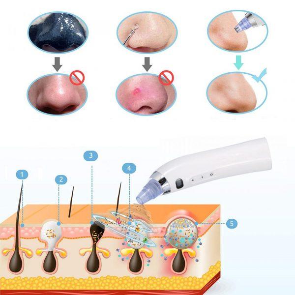вакуум уред за почистване на лице